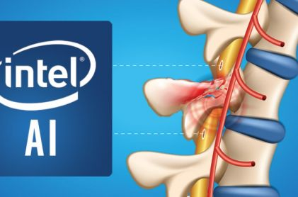 Intel and Brown University Deploy AI to Help Paralyzed Patients