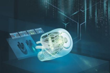 Siemens Helps to Produce Medical Components